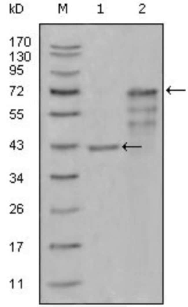 anti-Chitotriosidase/CHIT1, Clone: 1D9G2, Novus Biologicals 0.1mL; Unlabeled:Life