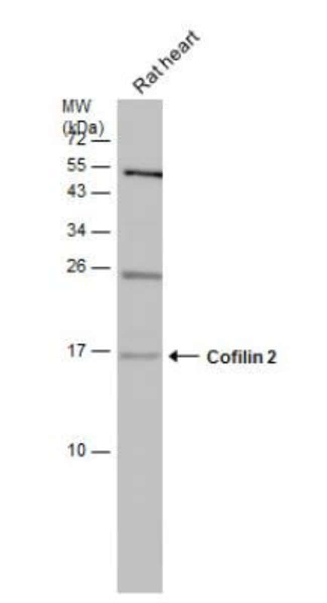 anti-Cofilin 2, Polyclonal, Novus Biologicals 0.1mL; Unlabeled:Life Sciences