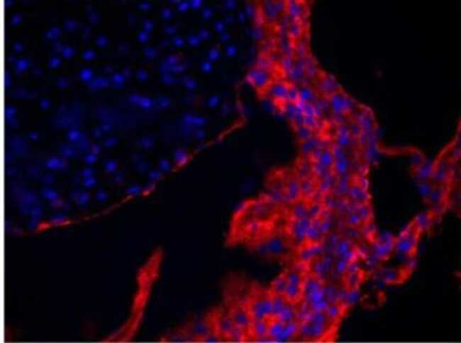 anti-Collagen V, Polyclonal, Novus Biologicals 0.1mg; Unlabeled:Life Sciences