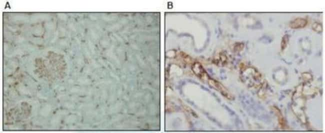 Rabbit anti-Complement C4, Clone: A24-T, Novus Biologicals:Antibodies:Primary