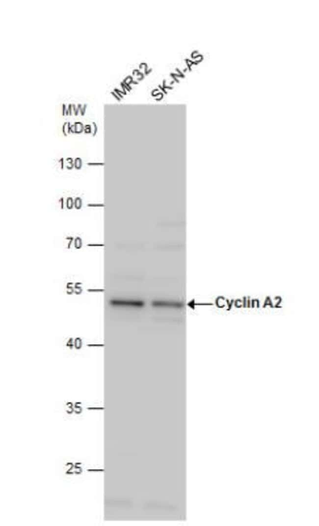 anti-Cyclin A2, Polyclonal, Novus Biologicals 0.1mL; Unlabeled:Life Sciences