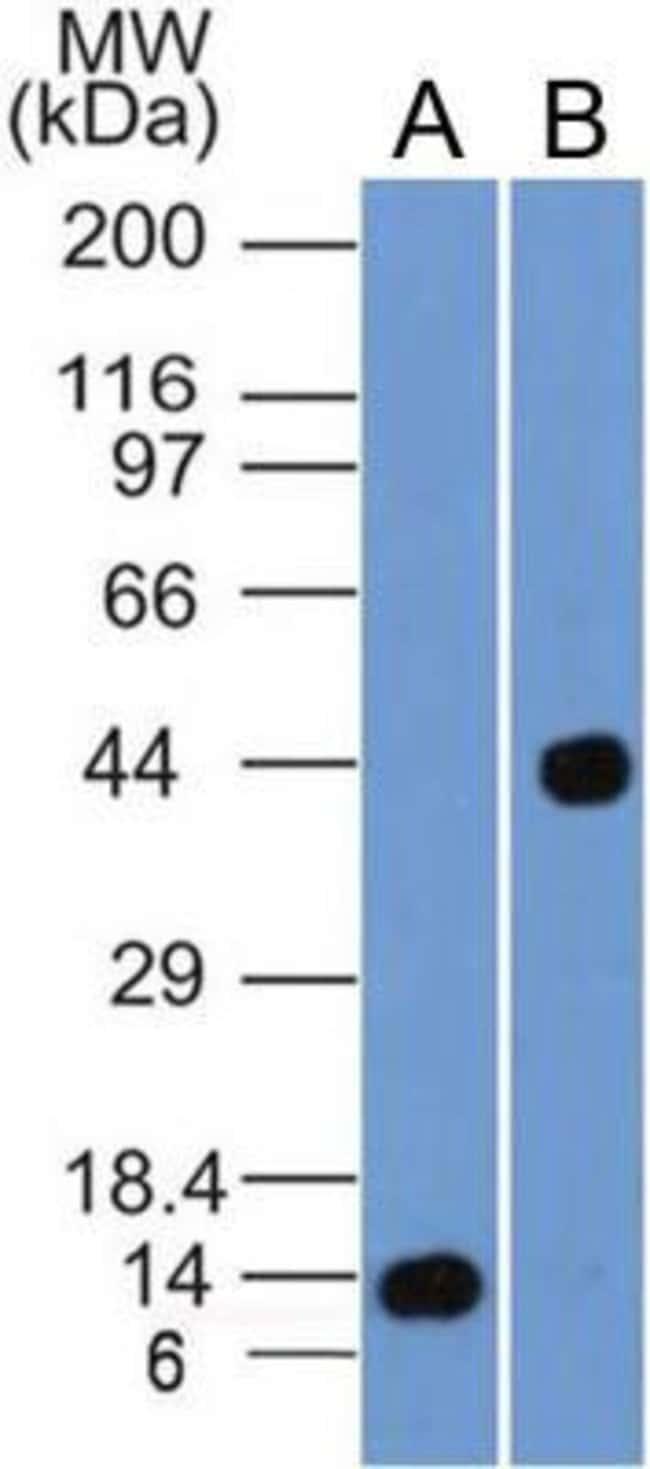 Mouse anti-Cyr61/CCN1, Clone: 3A7.1B8, Novus Biologicals:Antibodies:Primary