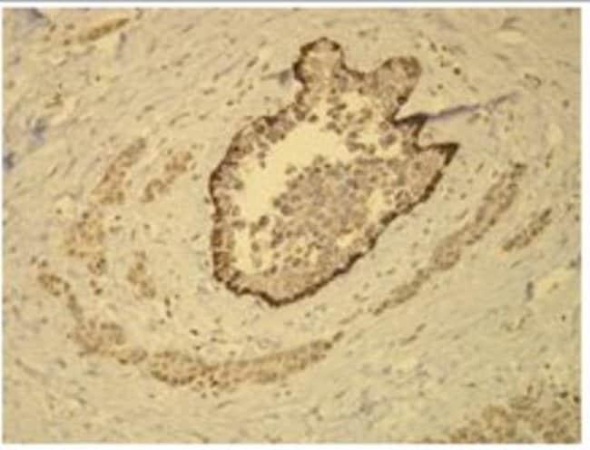 Rabbit anti-Cytokeratin 14, Clone: D19-N, Novus Biologicals:Antibodies:Primary