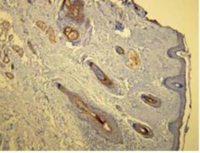 Rabbit anti-Cytokeratin 17, Clone: V21-R, Novus Biologicals:Antibodies:Primary