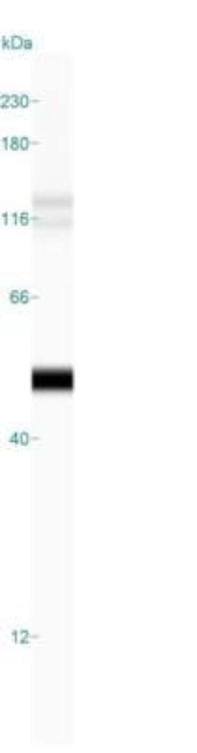 Mouse anti-Cytokeratin 19, Clone: BA17, Azide Free, Novus Biologicals:Antibodies:Primary