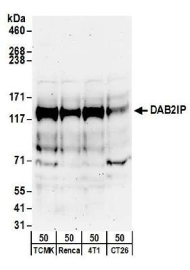 anti-DAB2IP, Polyclonal, Novus Biologicals 0.1mL; Unlabeled:Life Sciences
