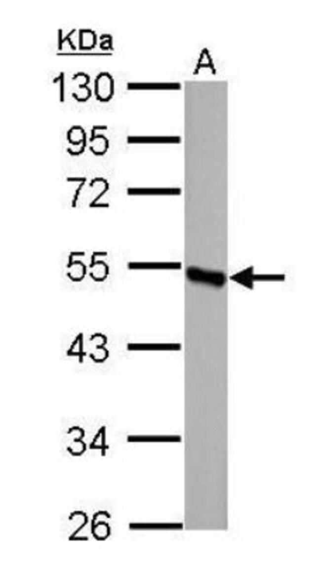 anti-DBT, Polyclonal, Novus Biologicals 0.1mL; Unlabeled:Antibodies