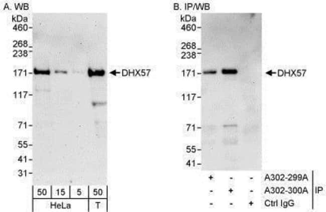 anti-DHX57, Polyclonal, Novus Biologicals 0.1mL; Unlabeled:Life Sciences