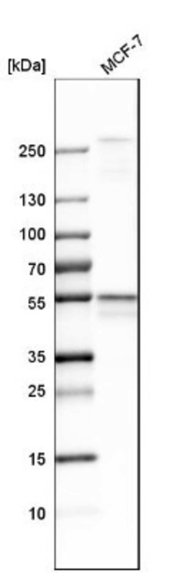 anti-DLST, Polyclonal, Novus Biologicals 0.1mL; Unlabeled:Life Sciences