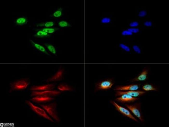 anti-DNMT1, Polyclonal, Novus Biologicals:Antibodies:Primary Antibodies