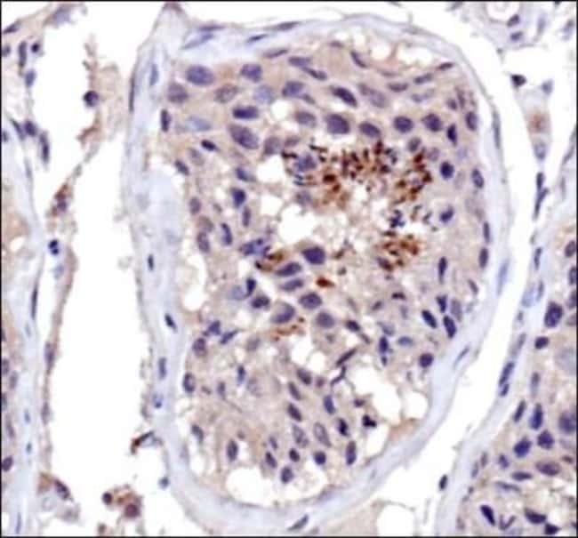 anti-DNMT3A, Polyclonal, Novus Biologicals:Antibodies:Primary Antibodies