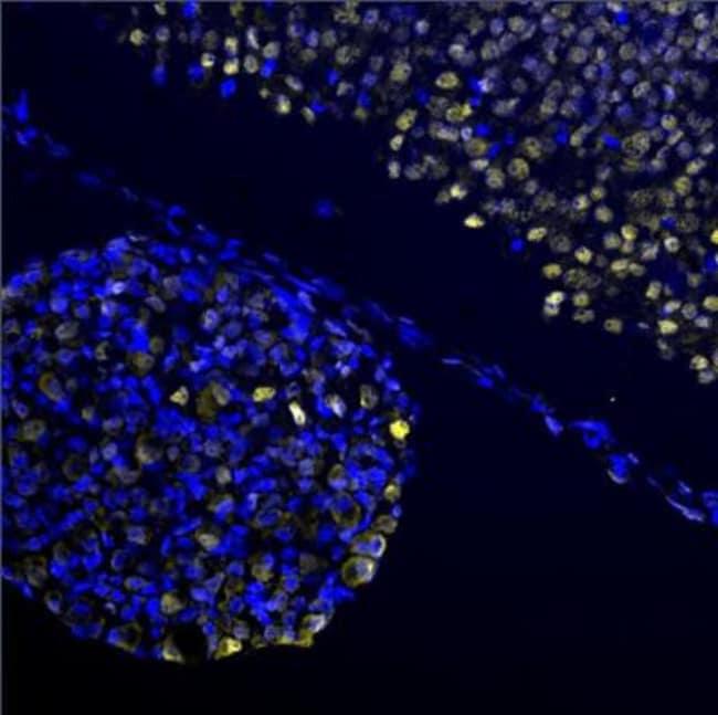 anti-EGR2, Polyclonal, Novus Biologicals:Antibodies:Primary Antibodies