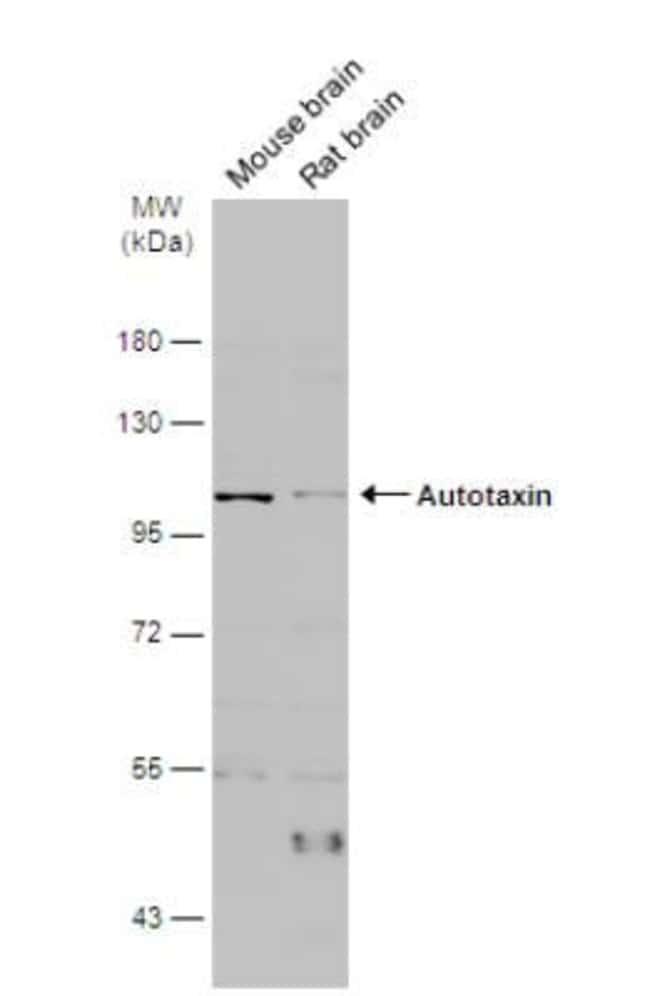 anti-ENPP-2/Autotaxin, Polyclonal, Novus Biologicals 0.1mL; Unlabeled:Life