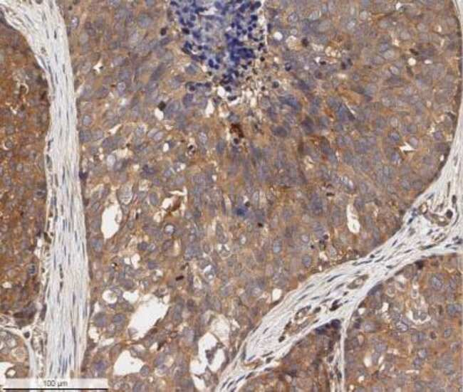 anti-ErbB2/Her2, Polyclonal, Novus Biologicals:Antibodies:Primary Antibodies