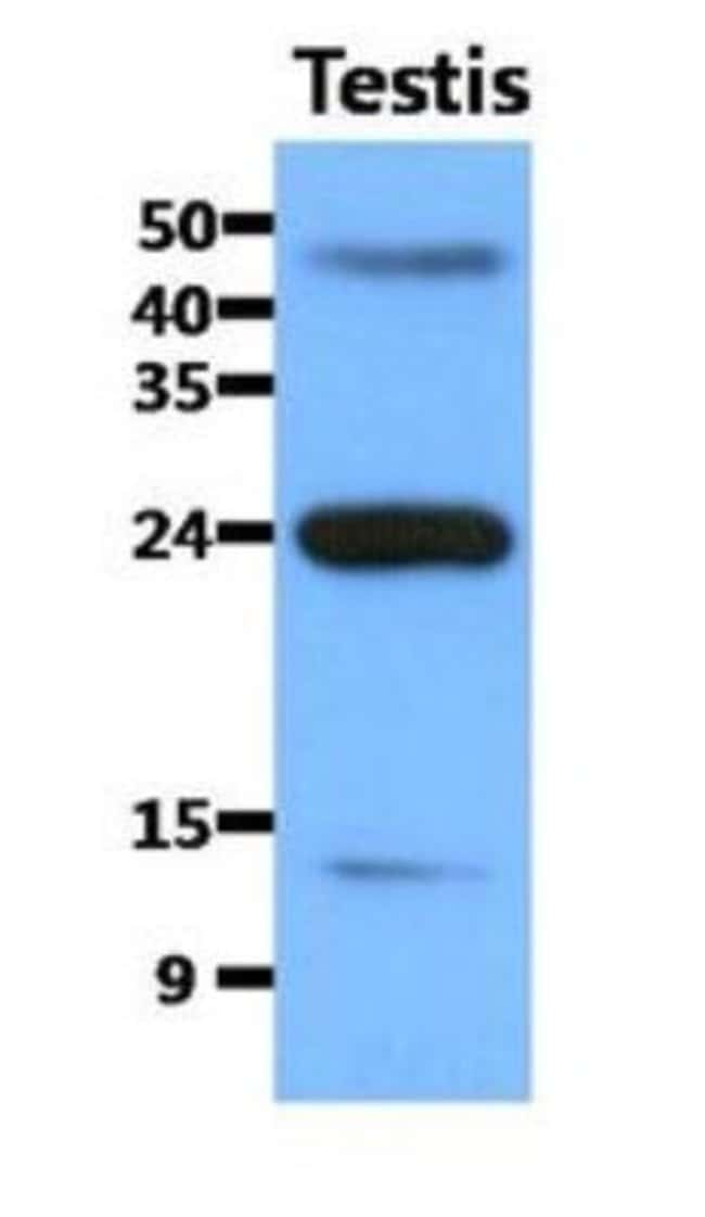 Mouse anti-FABP9/T-FABP, Clone: 13F9, Novus Biologicals:Antibodies:Primary