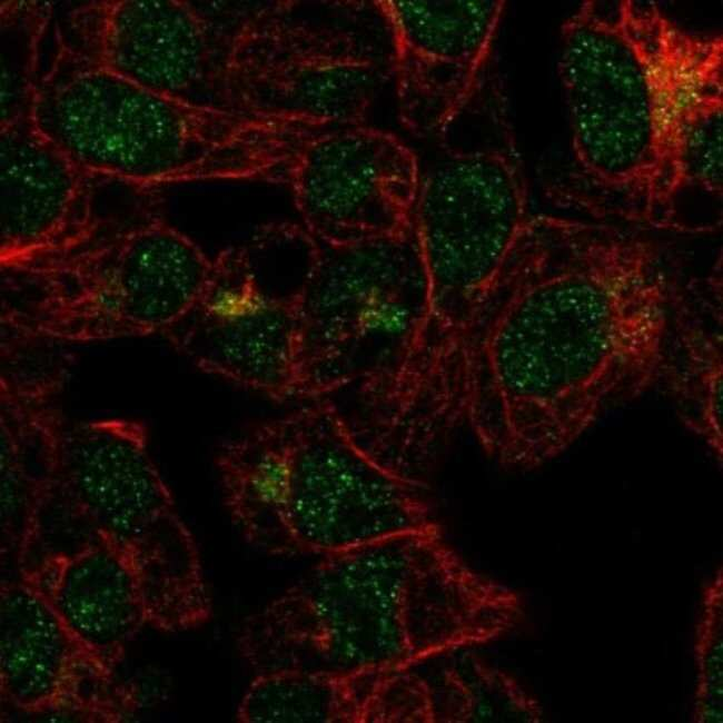 anti-FBXO31, Polyclonal, Novus Biologicals 0.1mL; Unlabeled:Life Sciences