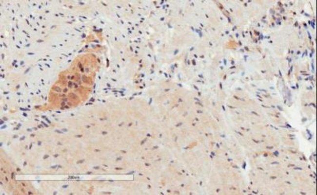 anti-FFAR4/GPR120, Polyclonal, Novus Biologicals 0.1mg; Unlabeled