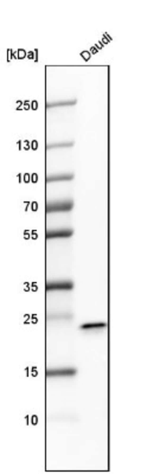 FKBP11 Rabbit anti-Human, Mouse, Polyclonal, Novus Biologicals 0.1mL; Unlabeled:Life