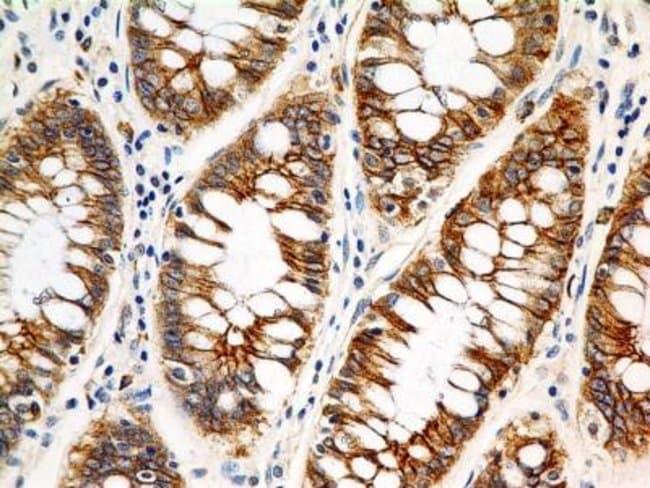 Mouse anti-FSH R, Clone: 6E8.2F5, Novus Biologicals:Antibodies:Primary