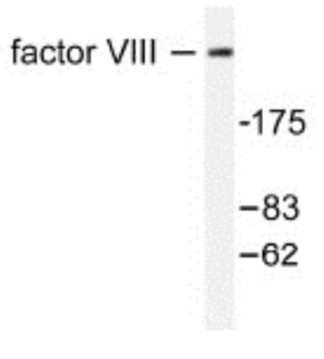 anti-Factor VIII, Polyclonal, Novus Biologicals:Antibodies:Primary Antibodies