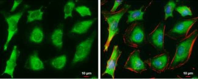 anti-Ferritin, Polyclonal, Novus Biologicals 0.1mL; Unlabeled:Life Sciences
