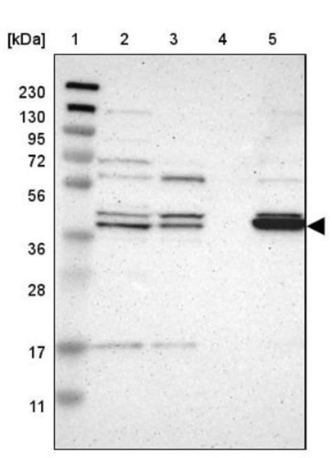 anti-GDAP1, Polyclonal, Novus Biologicals 0.1mL; Unlabeled:Life Sciences
