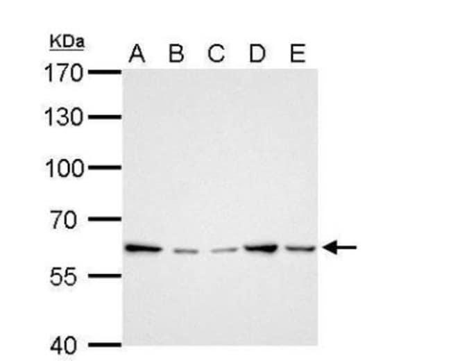 anti-GGT1, Polyclonal, Novus Biologicals 0.1mg; Unlabeled:Life Sciences