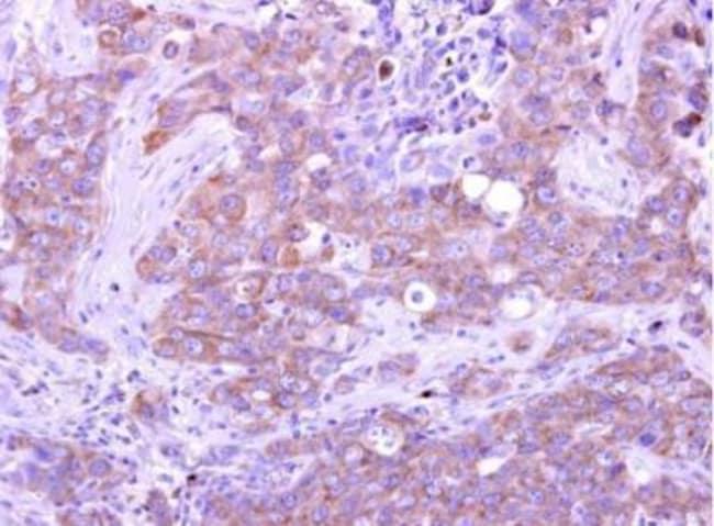 anti-GIMAP5, Polyclonal, Novus Biologicals 0.1mg; Unlabeled:Antibodies