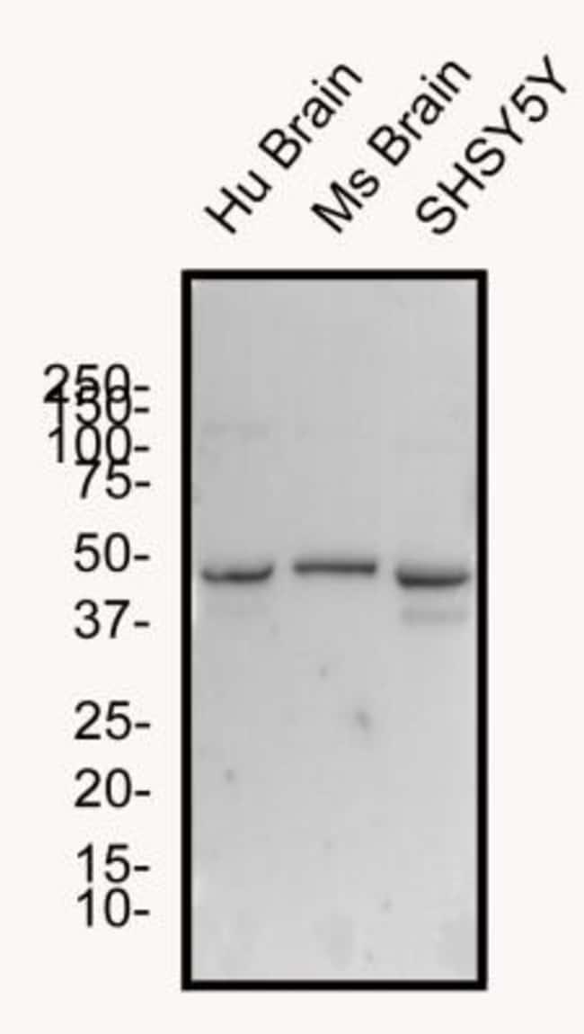 anti-GLP-1R, Polyclonal, Novus Biologicals:Antibodies:Primary Antibodies