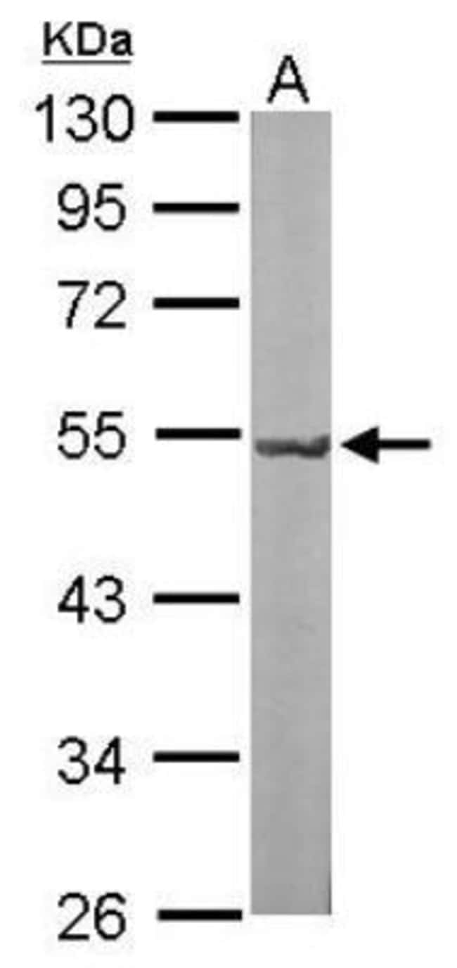 anti-GNAL, Polyclonal, Novus Biologicals 0.1mL; Unlabeled:Antibodies