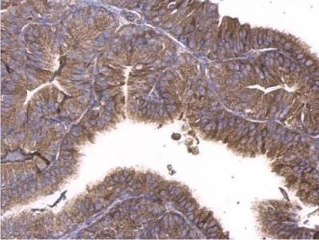anti-GNAQ, Polyclonal, Novus Biologicals 0.1mL; Unlabeled:Life Sciences