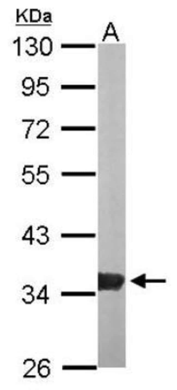 anti-GPD1L, Polyclonal, Novus Biologicals 0.1mg; Unlabeled:Life Sciences