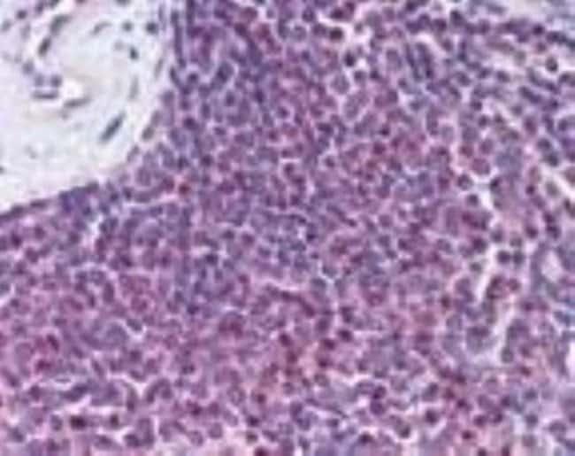 anti-GPR109B/HM74, Polyclonal, Novus Biologicals:Antibodies:Primary Antibodies