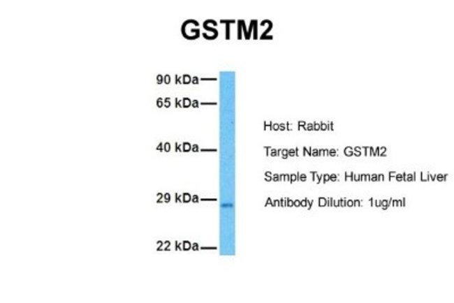 GSTM2 Rabbit anti-Human, Zebrafish, Polyclonal, Novus Biologicals 0.05mg;