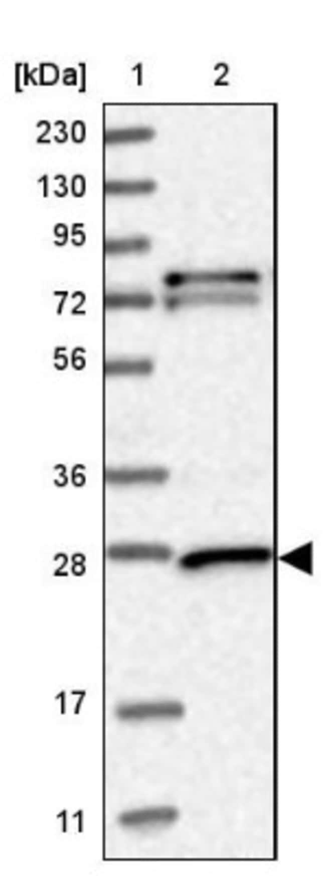 anti-GSTM3, Polyclonal, Novus Biologicals 0.1mL; Unlabeled:Life Sciences