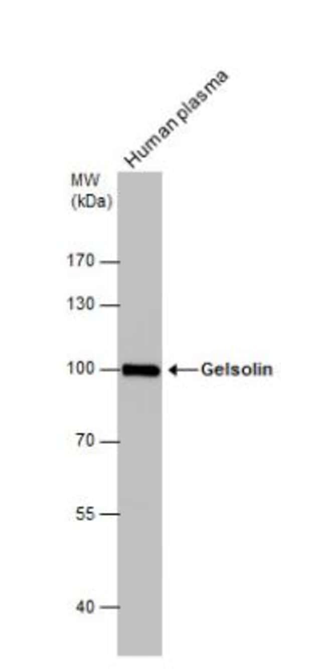 anti-Gelsolin/GSN, Polyclonal, Novus Biologicals 0.1mL; Unlabeled:Life