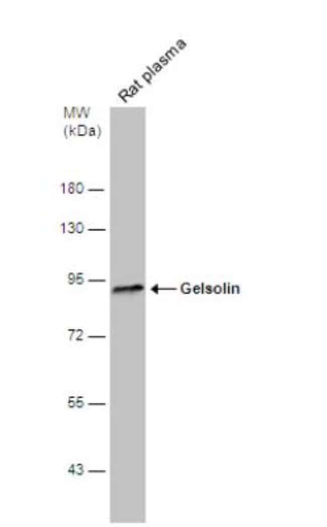 anti-Gelsolin/GSN, Polyclonal, Novus Biologicals 0.1mL; Unlabeled:Antibodies