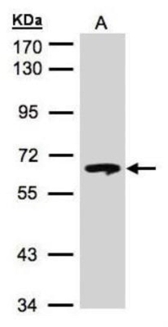 Rabbit anti-Glucosylceramidase/GBA, Polyclonal, Novus Biologicals 0.02mL:Life