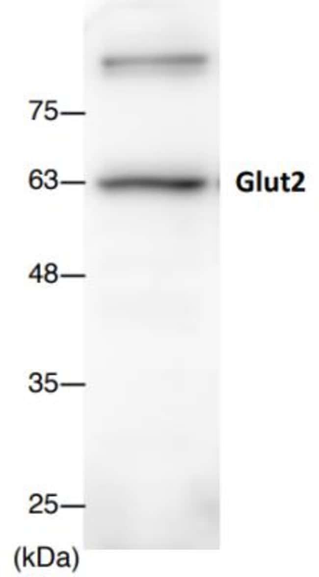 anti-Glut2, Polyclonal, Novus Biologicals:Antibodies:Primary Antibodies