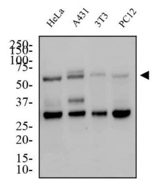 anti-Glut4, Polyclonal, Novus Biologicals:Antibodies:Primary Antibodies