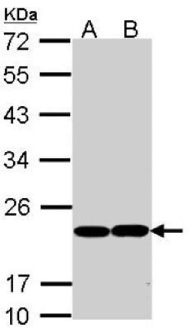 anti-Glutathione Peroxidase 1/GPX1, Polyclonal, Novus Biologicals 0.1mg;