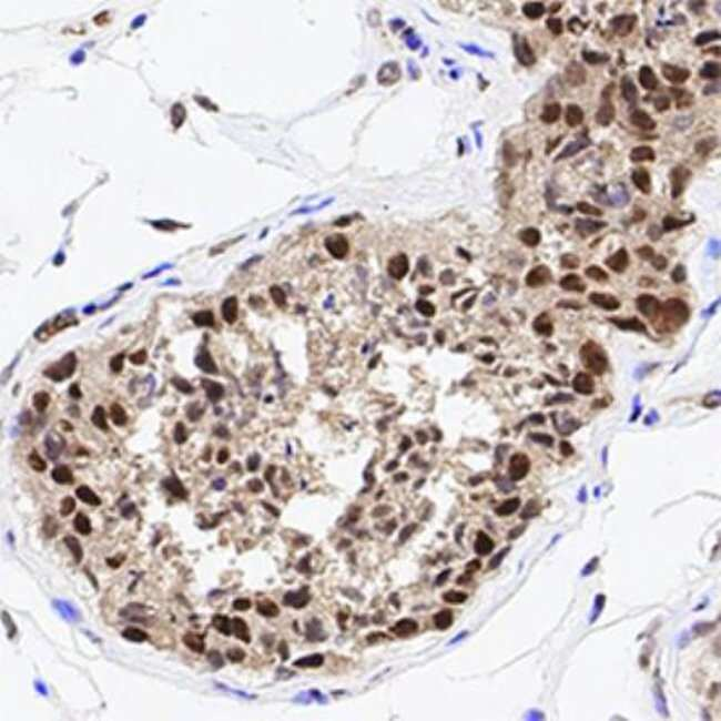anti-HDAC1, Polyclonal, Novus Biologicals:Antibodies:Primary Antibodies