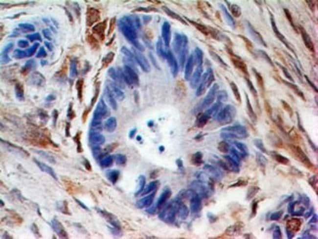 anti-HE4/WFDC2, Polyclonal, Novus Biologicals:Antibodies:Primary Antibodies