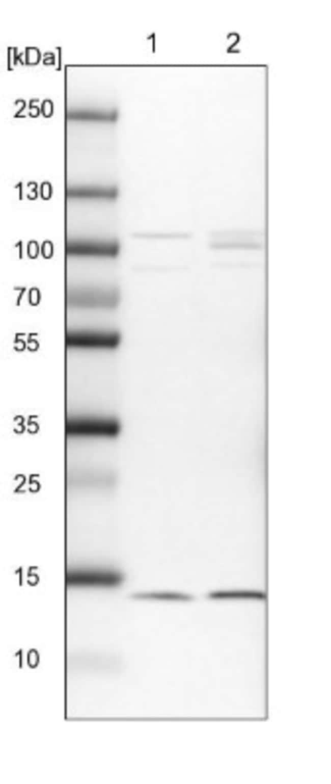 anti-HINT1, Polyclonal, Novus Biologicals 0.1mL; Unlabeled:Life Sciences