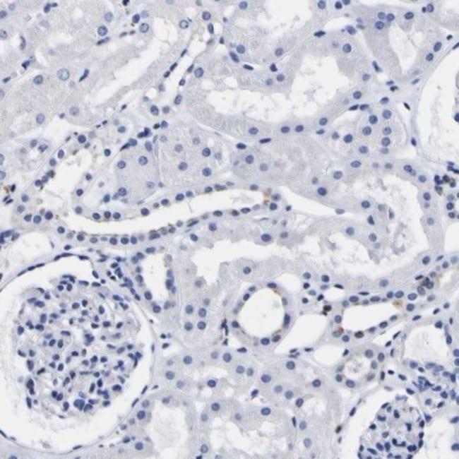anti-HLA DQA1, Polyclonal, Novus Biologicals 0.1mL; Unlabeled:Life Sciences