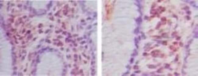 anti-HOIP/RNF31, Polyclonal, Novus Biologicals:Antibodies:Primary Antibodies