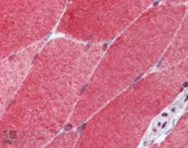 HSF1 Rat anti-Human, Mouse, Rat, Primate, Rabbit, Clone: 10H8, Novus Biologicals:Antibodies:Primary