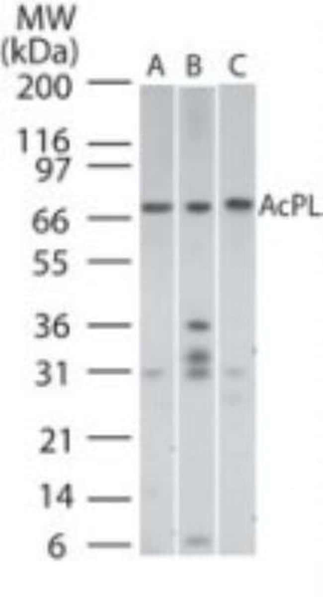 anti-IL-18 R beta/IL-1 R7/ACPL, Polyclonal, Novus Biologicals:Antibodies:Primary