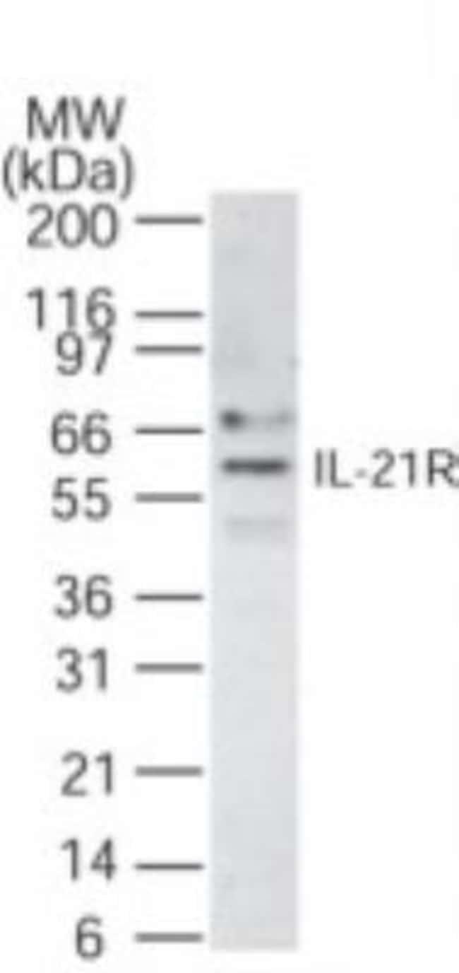 anti-IL-21 R, Polyclonal, Novus Biologicals:Antibodies:Primary Antibodies