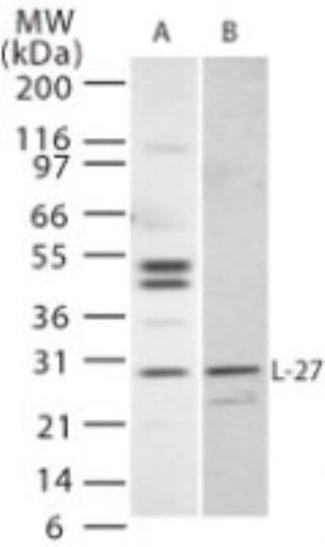 anti-IL-27, Polyclonal, Novus Biologicals:Antibodies:Primary Antibodies